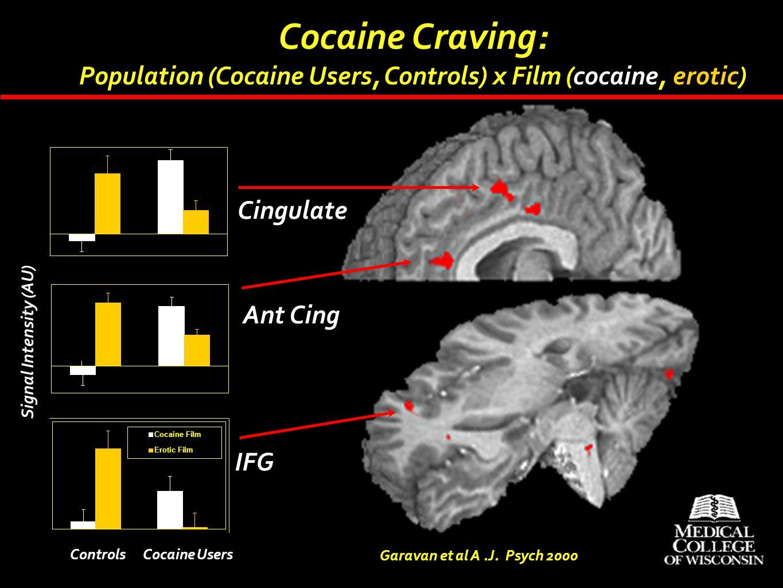 Cocaine Craving: Population (Cocaine Users, Controls) x Film (cocaine, erotic) Garavan et al A.J. Psych 2000 IFG Ant Cing Cingulate Signal Intensity (