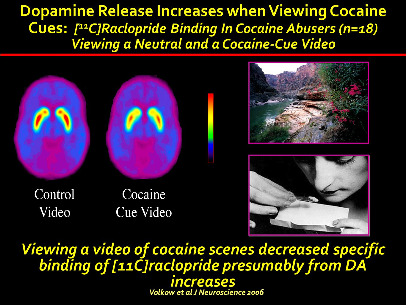 Dopamine Release Increases when Viewing Cocaine Cues: [ 11 C]Raclopride Binding In Cocaine Abusers (n=18) Viewing a Neutral and a Cocaine-Cue Video Vi