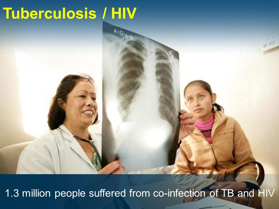 Tuberculosis / HIV 1.3 million people suffered from co-infection of TB and HIV