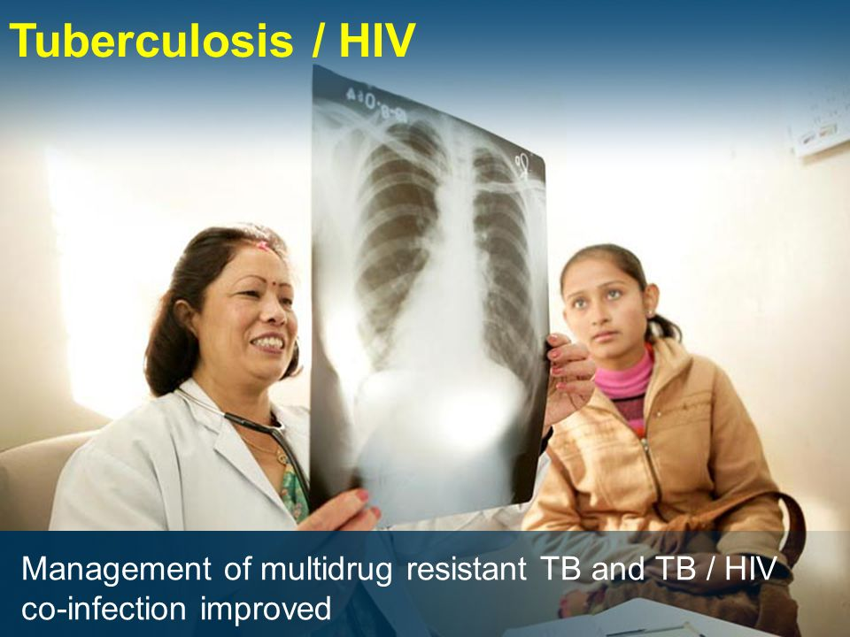 Tuberculosis / HIV Management of multidrug resistant TB and TB / HIV co-infection improved