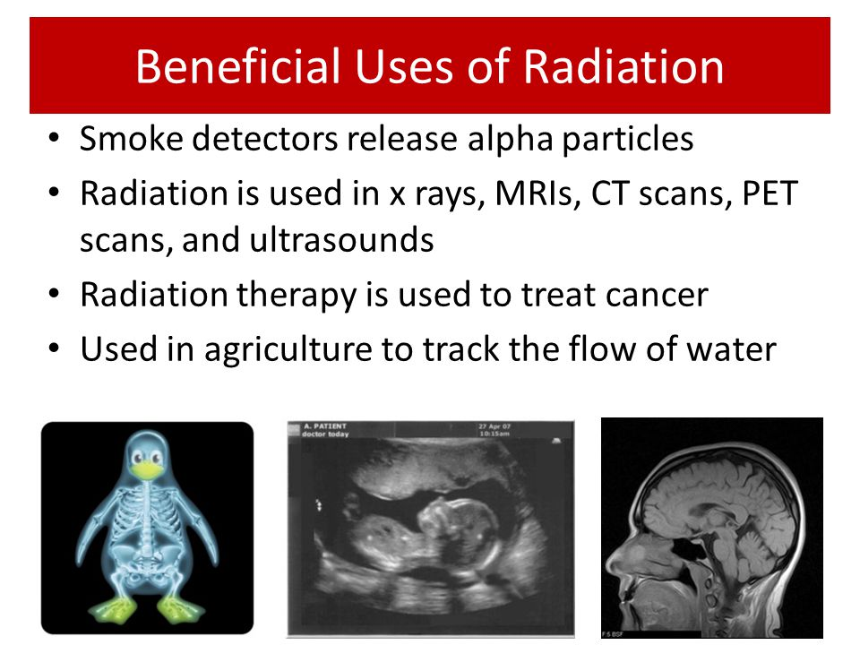 Beneficial Uses of Radiation Smoke detectors release alpha particles Radiation is used in x rays, MRIs, CT scans, PET scans, and ultrasounds Radiation