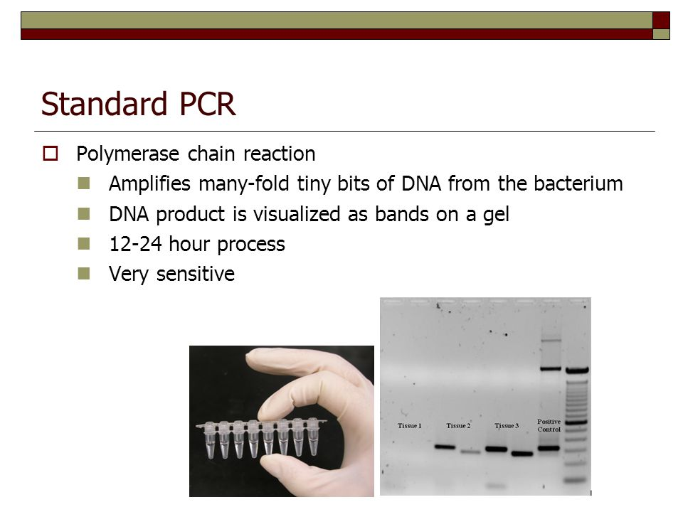 Standard PCR  Polymerase chain reaction Amplifies many-fold tiny bits of DNA from the bacterium DNA product is visualized as bands on a gel 12-24 hour process Very sensitive