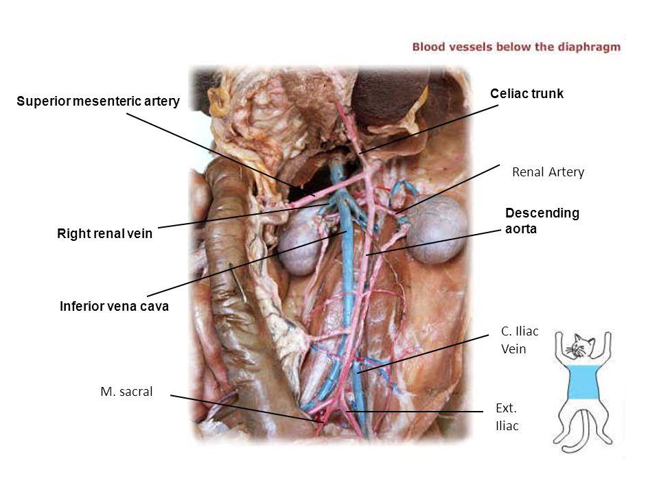 Superior mesenteric artery Right renal vein Inferior vena cava Descending aorta Celiac trunk Renal Artery C. Iliac Vein Ext. Iliac M. sacral