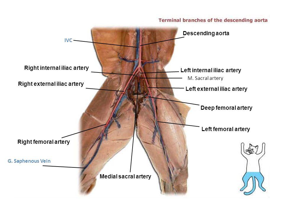 Right internal iliac artery Right external iliac artery Right femoral artery Medial sacral artery Left femoral artery Deep femoral artery Left externa