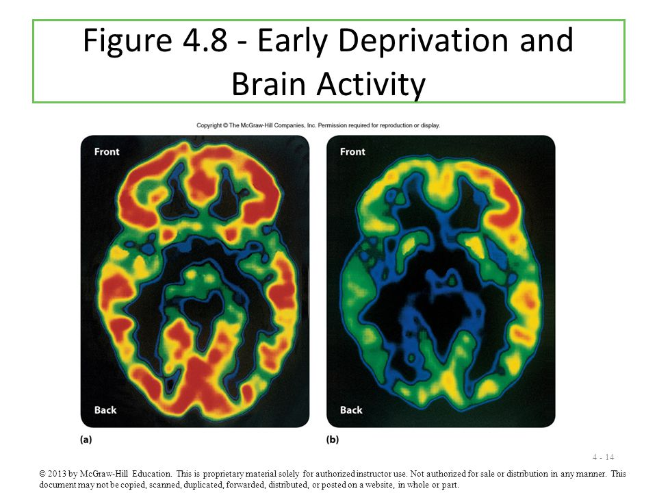 4 - 14 Figure 4.8 - Early Deprivation and Brain Activity © 2013 by McGraw-Hill Education. This is proprietary material solely for authorized instructo