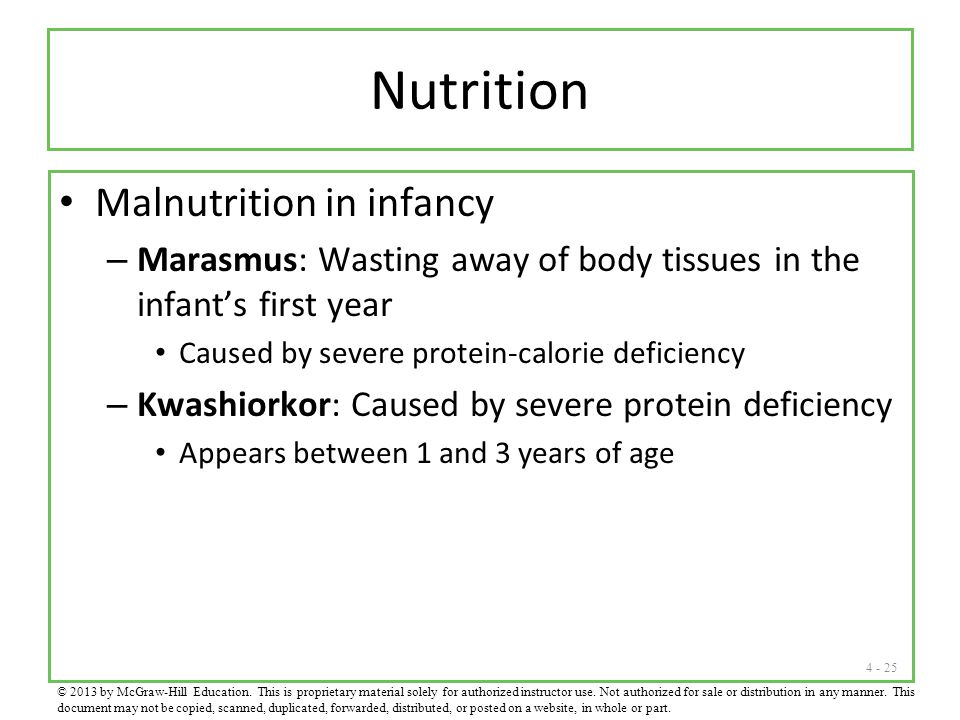 4 - 25 Nutrition Malnutrition in infancy – Marasmus: Wasting away of body tissues in the infant's first year Caused by severe protein-calorie deficien