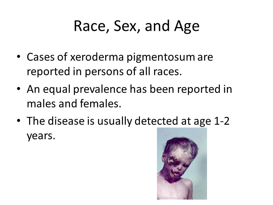 Race, Sex, and Age Cases of xeroderma pigmentosum are reported in persons of all races.