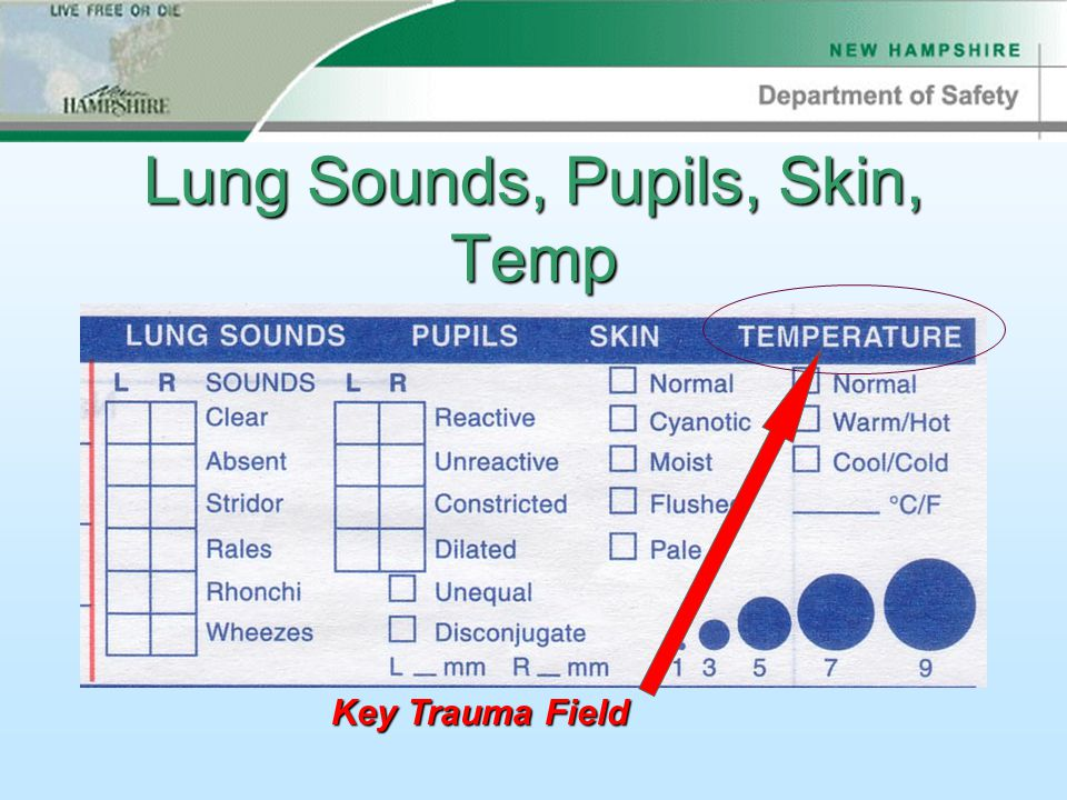 Lung Sounds, Pupils, Skin, Temp Key Trauma Field