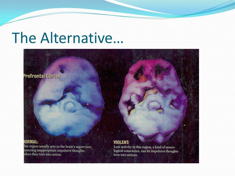 The Alternative…