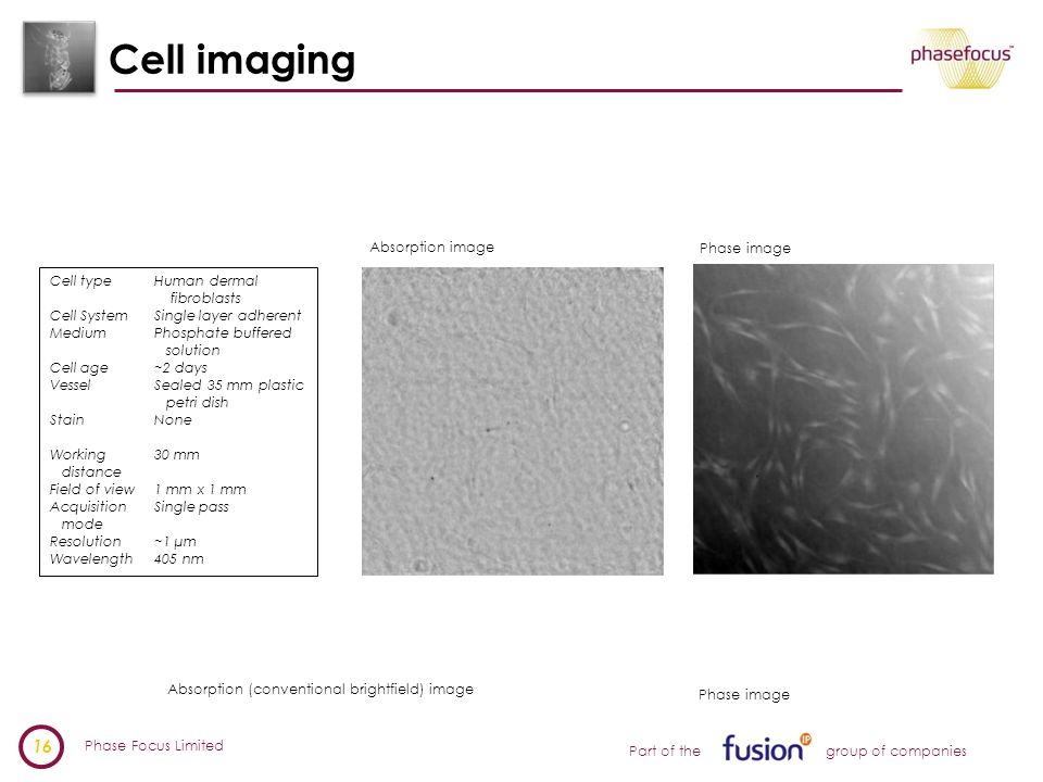 Phase Focus Limited 16 Part of the group of companies Cell imaging Absorption (conventional brightfield) image Phase image Cell typeHuman dermal fibroblasts Cell SystemSingle layer adherent MediumPhosphate buffered solution Cell age~2 days VesselSealed 35 mm plastic petri dish StainNone Working30 mm distance Field of view1 mm x 1 mm Acquisition Single pass mode Resolution~1 µm Wavelength405 nm Absorption image Phase image