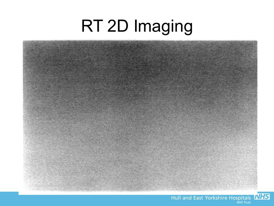 RT 2D Imaging Huttner image for this detector scored 12 groups (1.8 lp/mm) This is much worse than this MTF suggests Possible image processing on the acquisition monitor not applied to image sent for MTF analysis –Does this demonstrate the usefulness of doing quantitative QA?