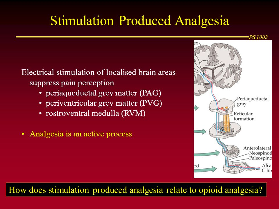 PS 1003 Stimulation Produced Analgesia Electrical stimulation of localised brain areas suppress pain perception periaqueductal grey matter (PAG) periv