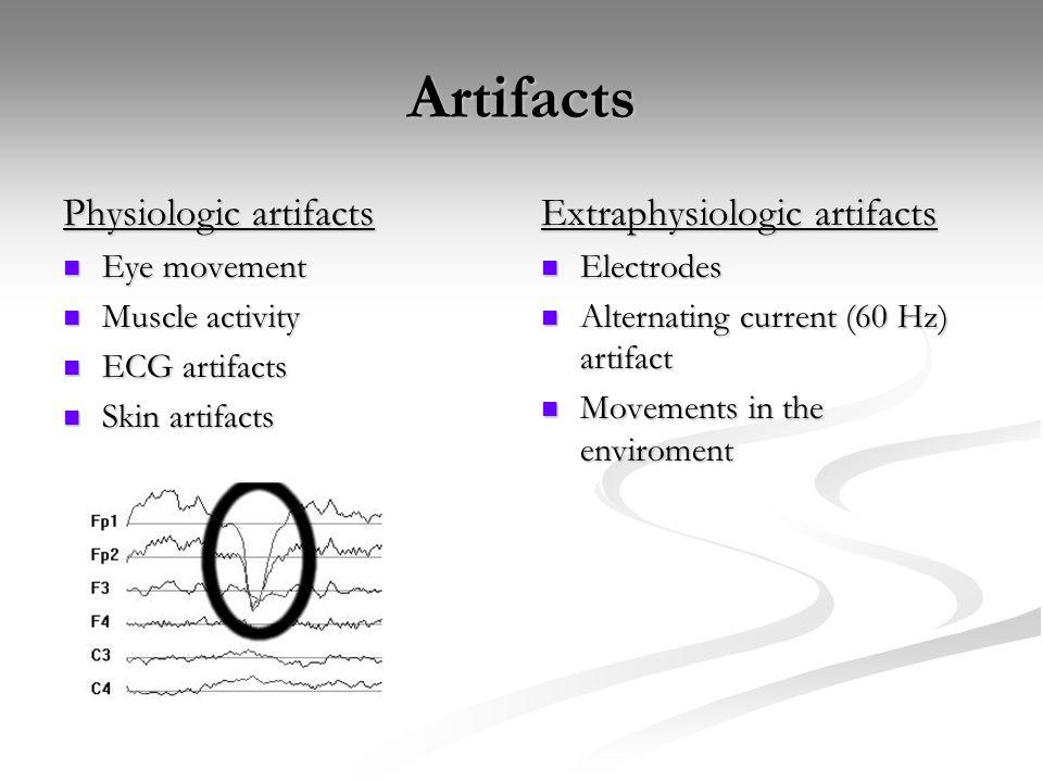 Artifacts Physiologic artifacts Eye movement Eye movement Muscle activity Muscle activity ECG artifacts ECG artifacts Skin artifacts Skin artifacts Ex
