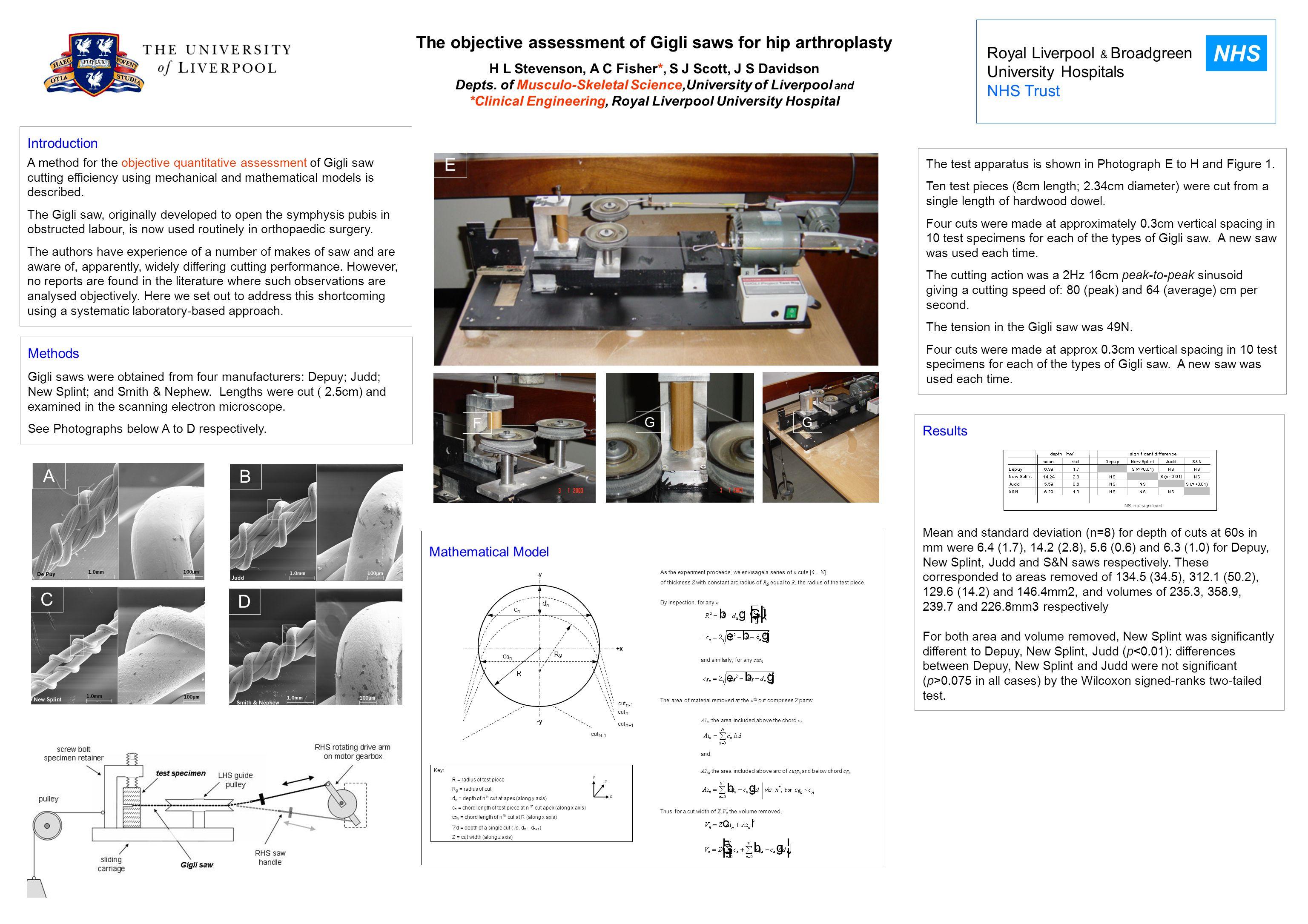The objective assessment of Gigli saws for hip arthroplasty H L Stevenson, A C Fisher*, S J Scott, J S Davidson Depts. of Musculo-Skeletal Science,Uni