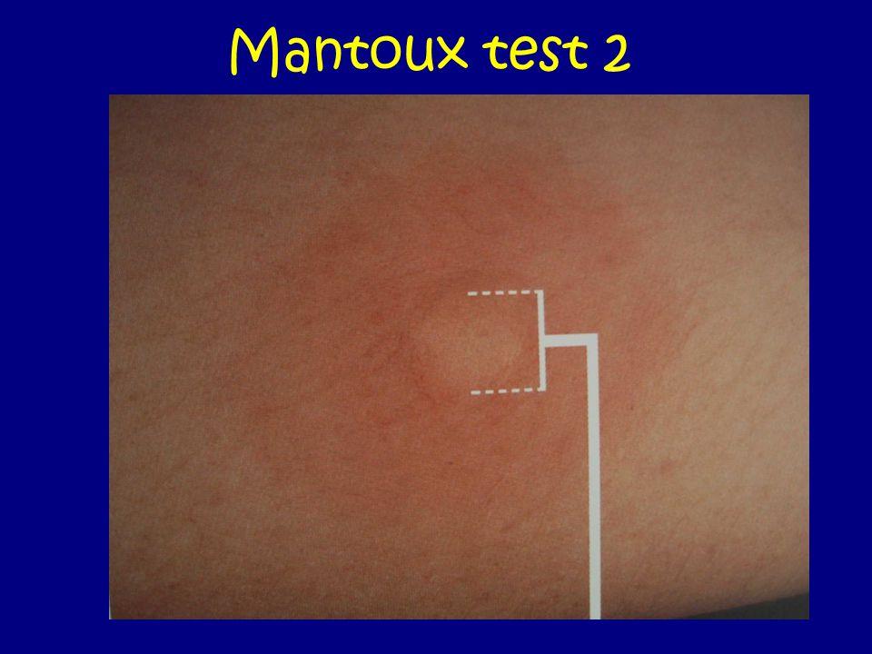Mantoux test 2