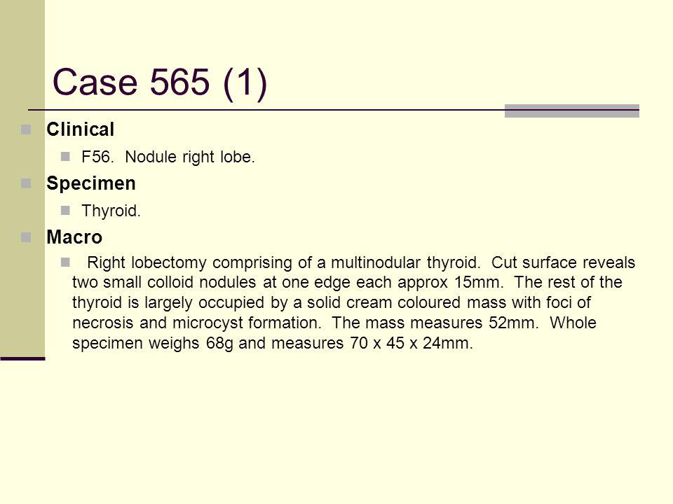 Case 565 (1) Clinical F56. Nodule right lobe. Specimen Thyroid.