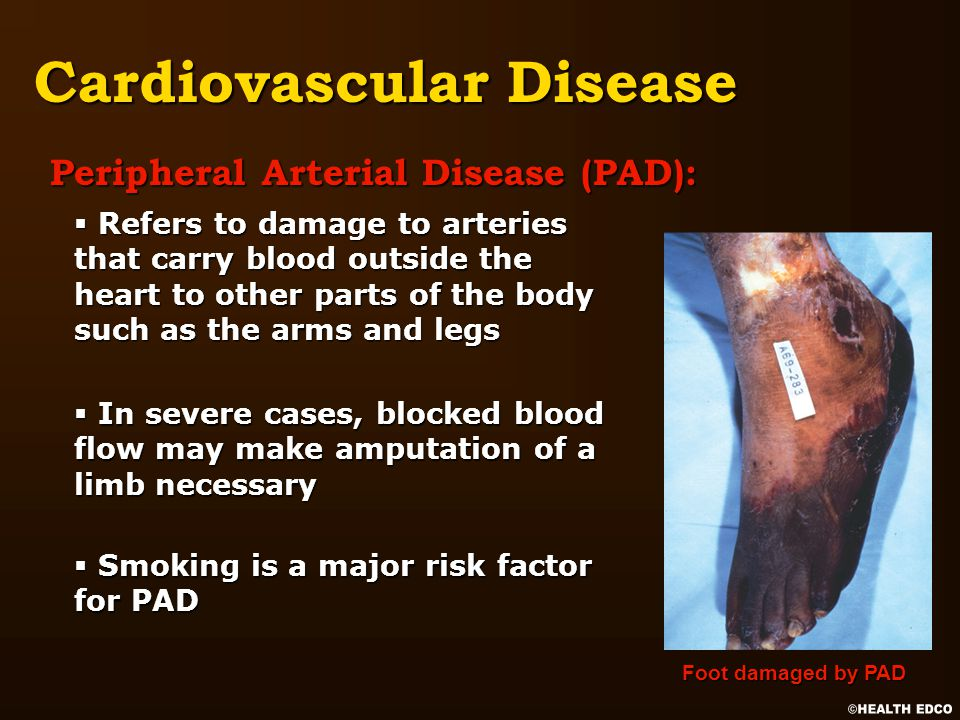 Cardiovascular Disease Peripheral Arterial Disease (PAD): § Refers to damage to arteries that carry blood outside the heart to other parts of the body such as the arms and legs § In severe cases, blocked blood flow may make amputation of a limb necessary § Smoking is a major risk factor for PAD Foot damaged by PAD