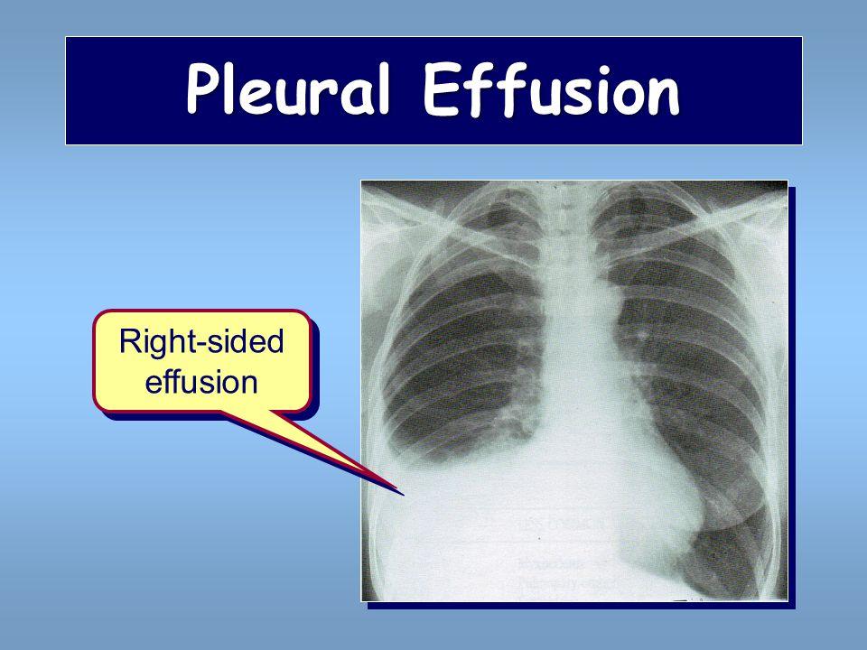 Pleural Effusion Right-sided effusion