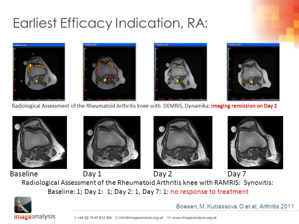 BaselineDay 1Day 2Day 7 Boesen, M; Kubassova, O et al, Arthritis 2011 Earliest Efficacy Indication, RA: Radiological Assessment of the Rheumatoid Arthritis knee with RAMRIS: Synovitis: Baseline: 1; Day 1: 1; Day 2: 1, Day 7: 1: no response to treatment Radiological Assessment of the Rheumatoid Arthritis knee with DEMRIS, Dynamika: imaging remission on Day 2