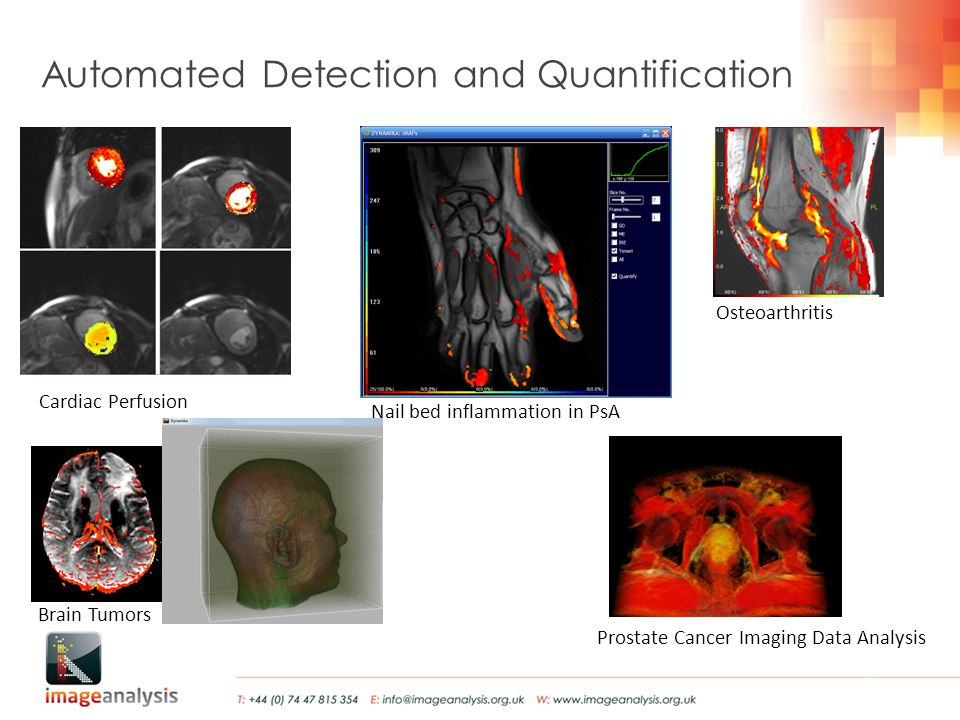 Automated Detection and Quantification Prostate Cancer Imaging Data Analysis Cardiac Perfusion Brain Tumors Osteoarthritis Nail bed inflammation in PsA