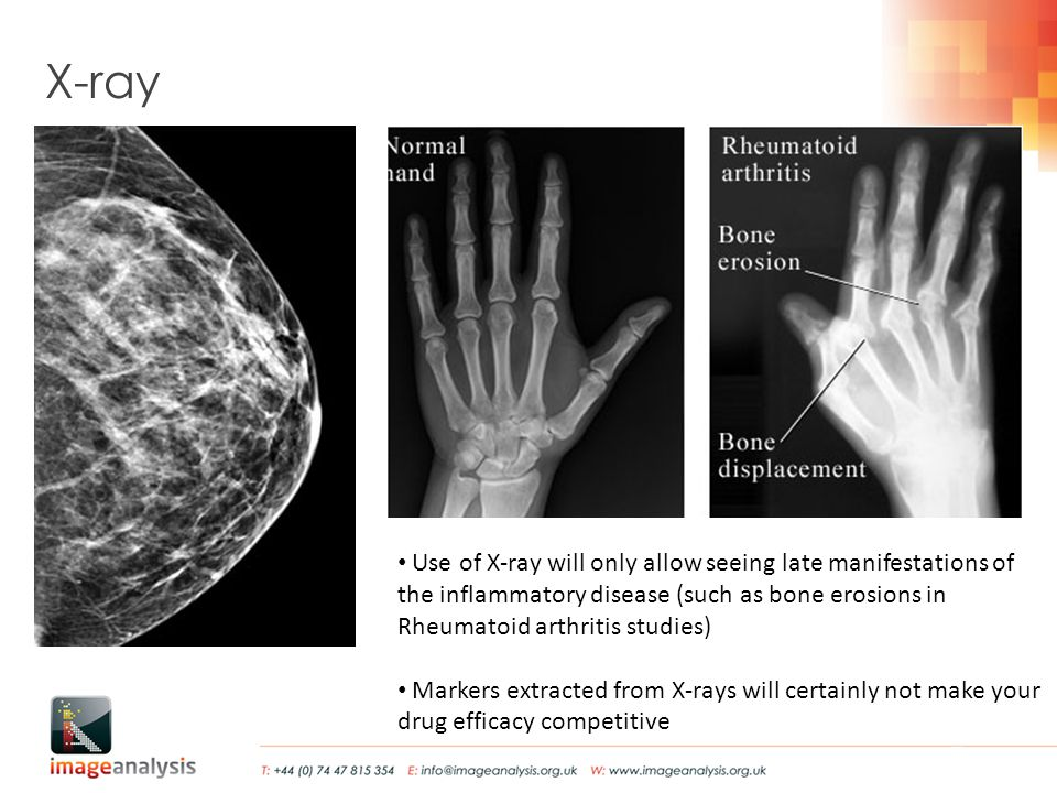 X-ray Use of X-ray will only allow seeing late manifestations of the inflammatory disease (such as bone erosions in Rheumatoid arthritis studies) Markers extracted from X-rays will certainly not make your drug efficacy competitive