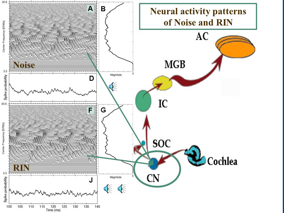 CNBH, PDN, University of Cambridge Auditory Image B G J F A D Neural activity patterns of Noise and RIN Noise RIN