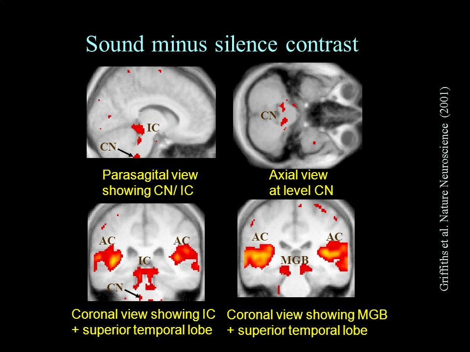 CNBH, PDN, University of Cambridge 40 35 30 25 20 15 10 5 0 T value Axial view at level CN CN Parasagital view showing CN/ IC IC CN Coronal view showing MGB + superior temporal lobe MGB AC Coronal view showing IC + superior temporal lobe IC AC CN Sound minus silence contrast Griffiths et al.