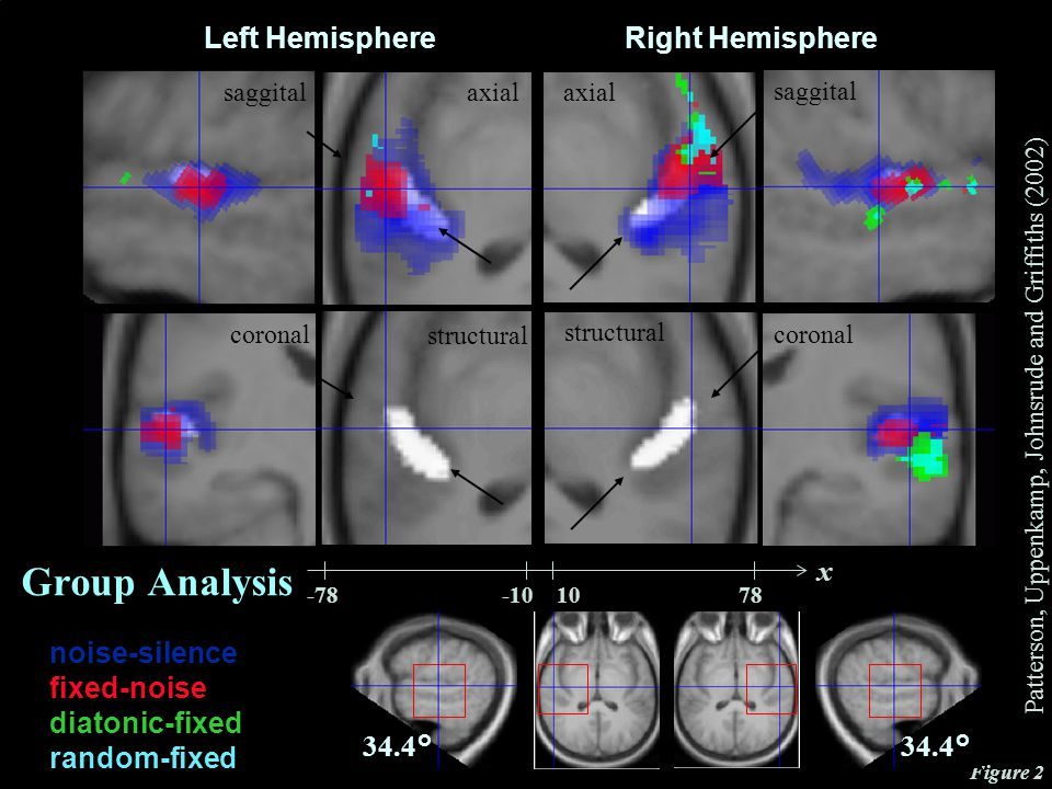 CNBH, PDN, University of Cambridge Left Hemisphere saggital axial Right Hemisphere structural coronal x Figure 2 noise-silence fixed-noise diatonic-fixed random-fixed 34.4° Group Analysis Patterson, Uppenkamp, Johnsrude and Griffiths (2002)