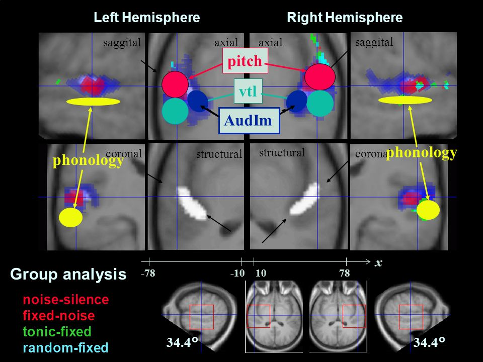 CNBH, PDN, University of Cambridge Left Hemisphere saggital axial Right Hemisphere structural coronal noise-silence fixed-noise tonic-fixed random-fixed 34.4° x Group analysis pitch phonology vtl AudIm