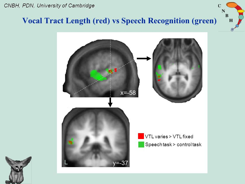 CNBH, PDN, University of Cambridge Vocal Tract Length (red) vs Speech Recognition (green) VTL varies > VTL fixed Speech task > control task x=-58 L y=-37