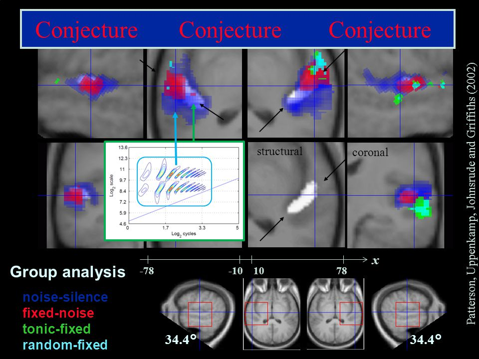 CNBH, PDN, University of Cambridge saggital axial structural coronal noise-silence fixed-noise tonic-fixed random-fixed 34.4° -78-101078 x Group analysis Patterson, Uppenkamp, Johnsrude and Griffiths (2002) Conjecture Conjecture Conjecture