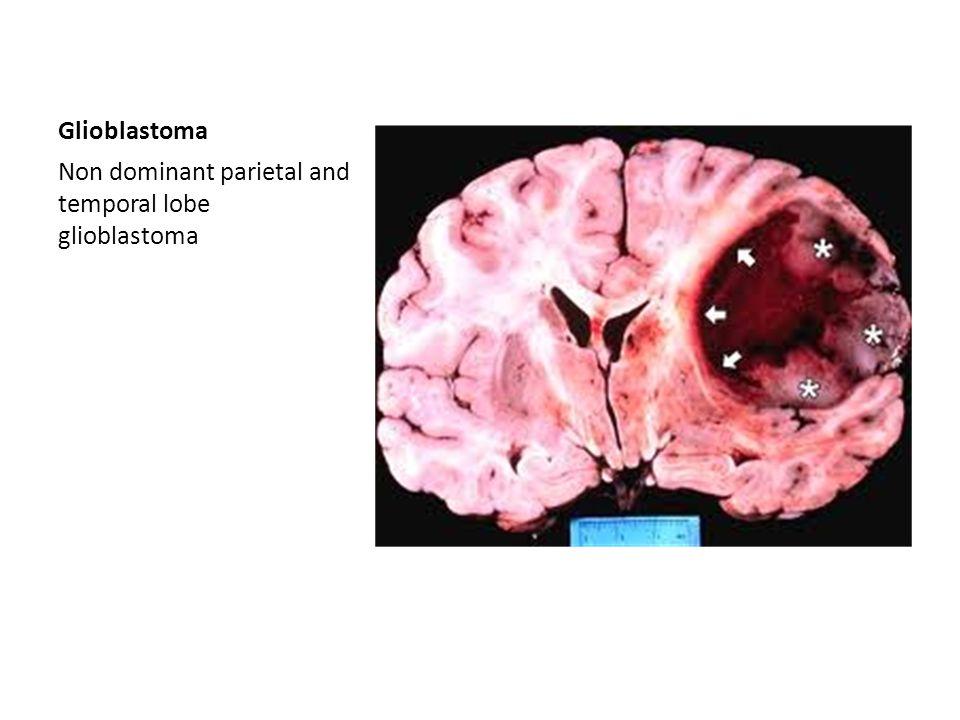 Glioblastoma Non dominant parietal and temporal lobe glioblastoma