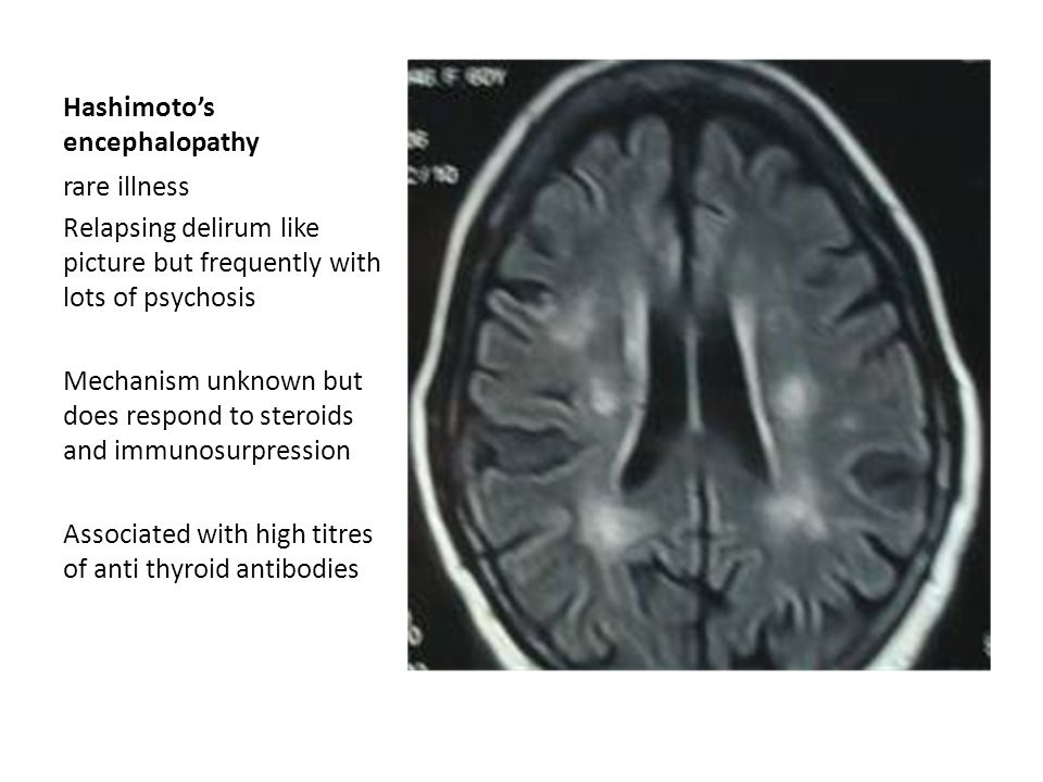 Hashimoto's encephalopathy rare illness Relapsing delirum like picture but frequently with lots of psychosis Mechanism unknown but does respond to ste