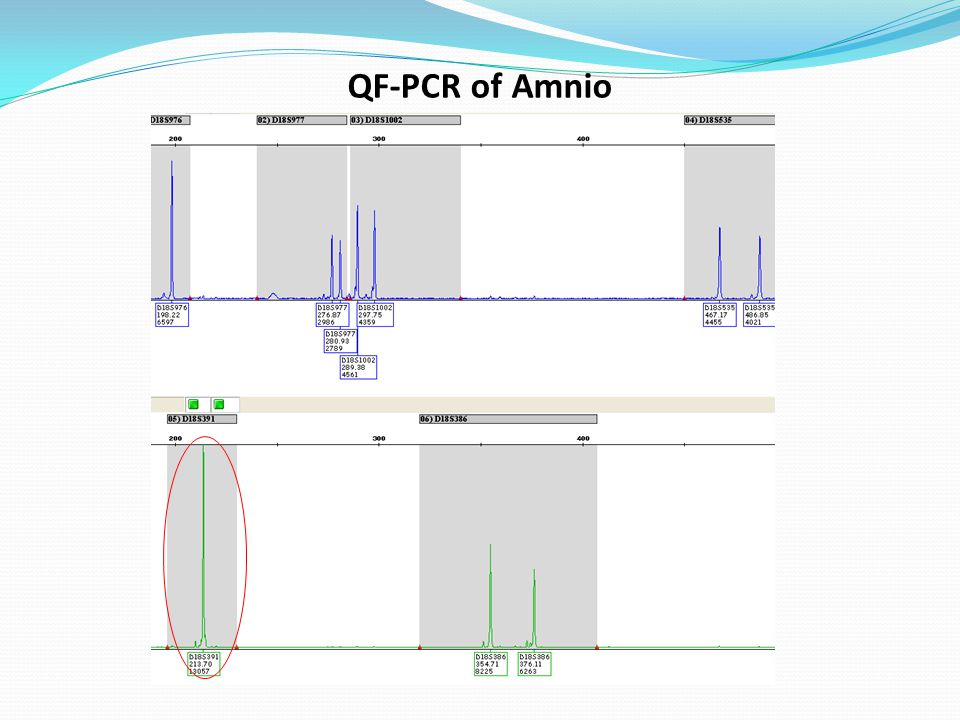 QF-PCR of Amnio