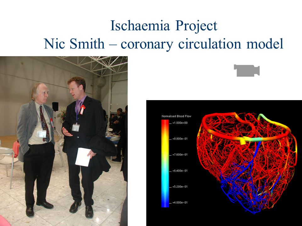 Ischaemia Project Nic Smith – coronary circulation model
