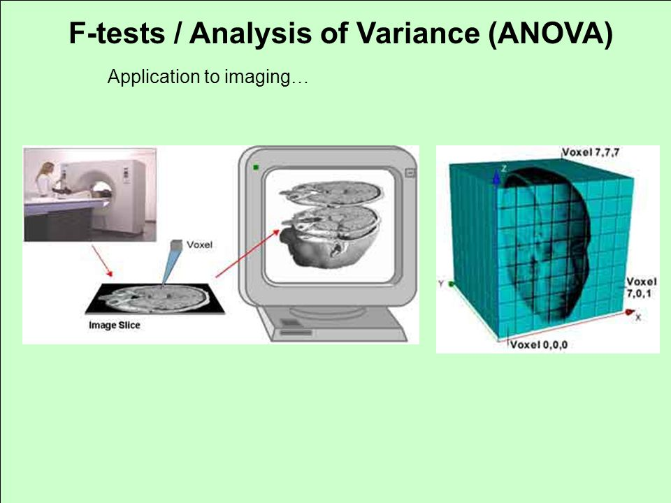 F-tests / Analysis of Variance (ANOVA) Application to imaging…