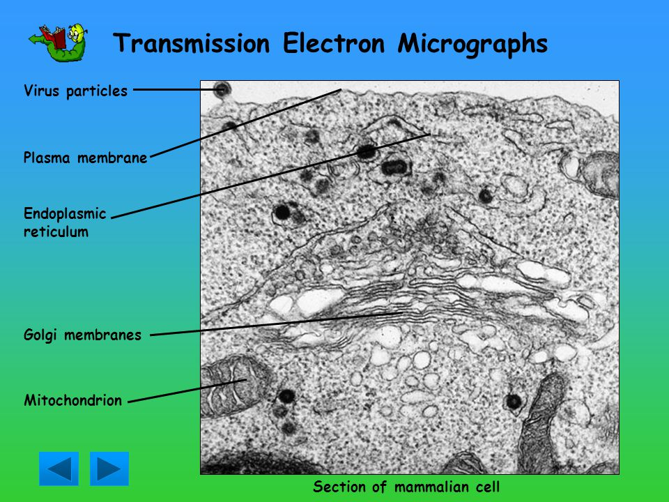 Investigating Micrographs Transmission Electron Micrographs Scanning Electron Micrographs Can you spot the differences between the two types of electr
