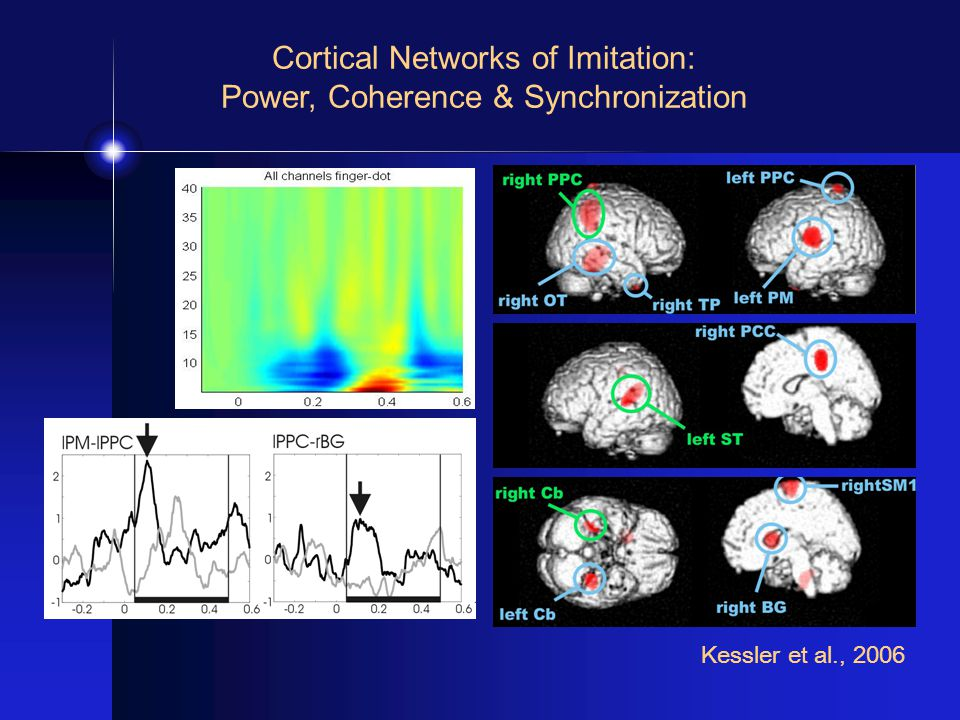 Cortical Networks of Imitation: Power, Coherence & Synchronization Kessler et al., 2006