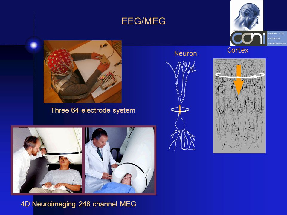 EEG/MEG Three 64 electrode system 4D Neuroimaging 248 channel MEG Cortex Neuron