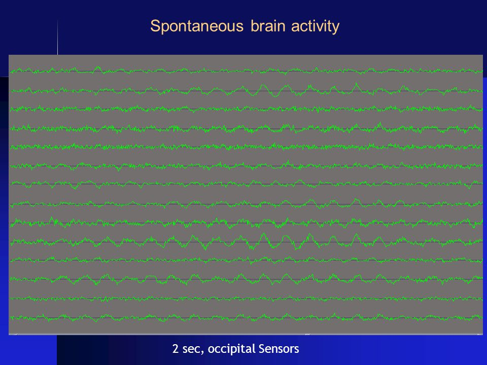 2 sec, occipital Sensors Spontaneous brain activity