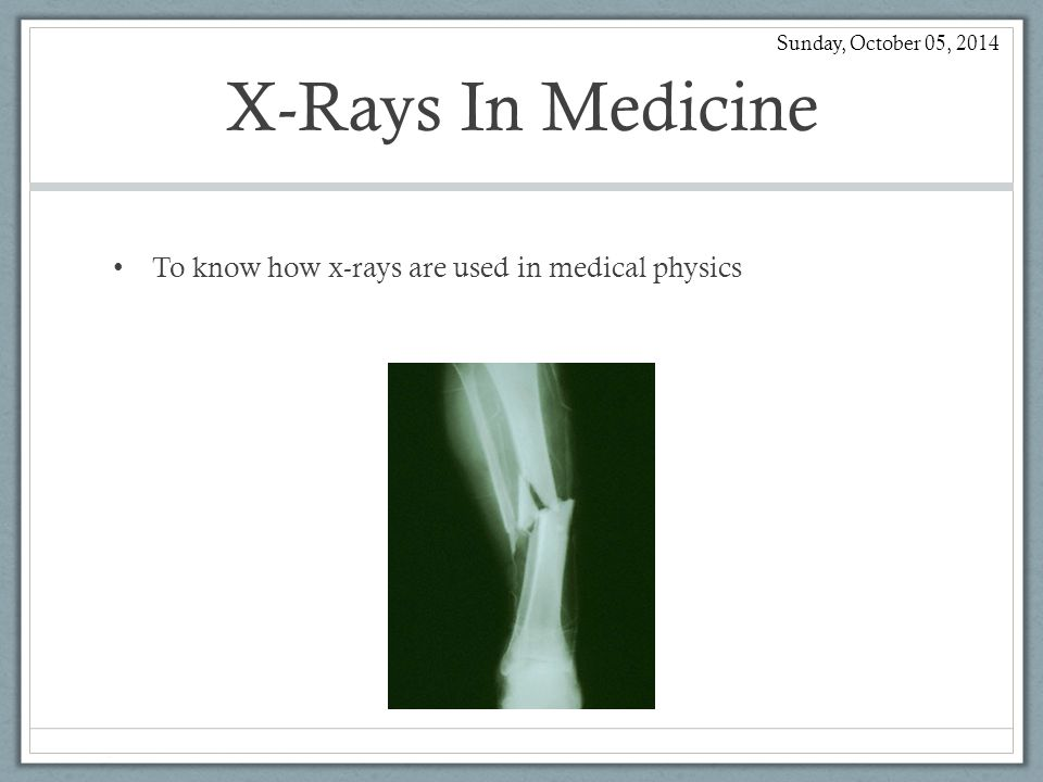 X-Rays What are x-rays, what properties do they have and how are they work.