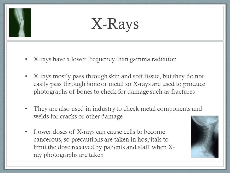 X-Rays X-rays have a lower frequency than gamma radiation X-rays mostly pass through skin and soft tissue, but they do not easily pass through bone or