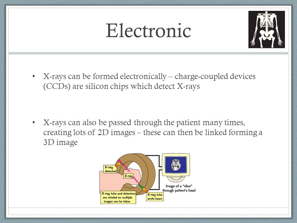 Electronic X-rays can be formed electronically – charge-coupled devices (CCDs) are silicon chips which detect X-rays X-rays can also be passed through