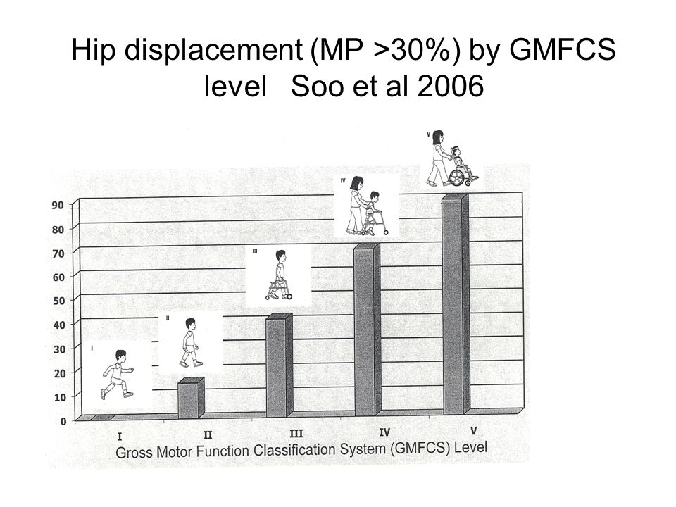 Hip displacement (MP >30%) by GMFCS level Soo et al 2006