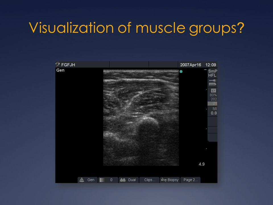 Visualization of muscle groups PL FCR PT