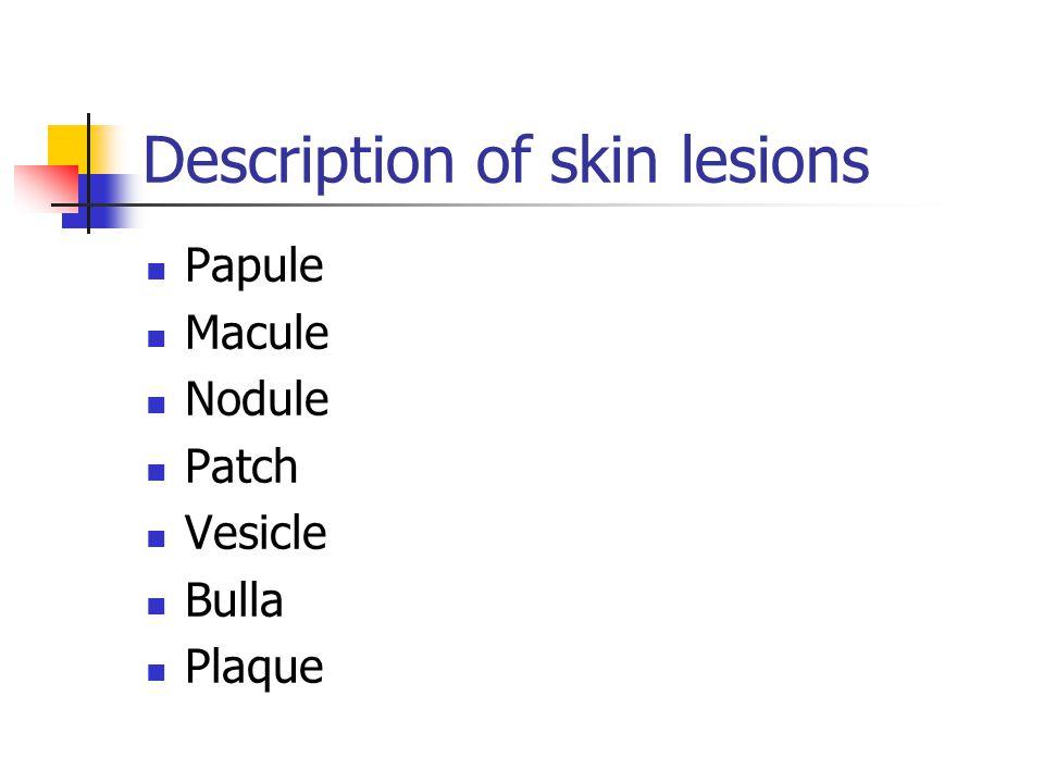 Description of skin lesions Papule Macule Nodule Patch Vesicle Bulla Plaque