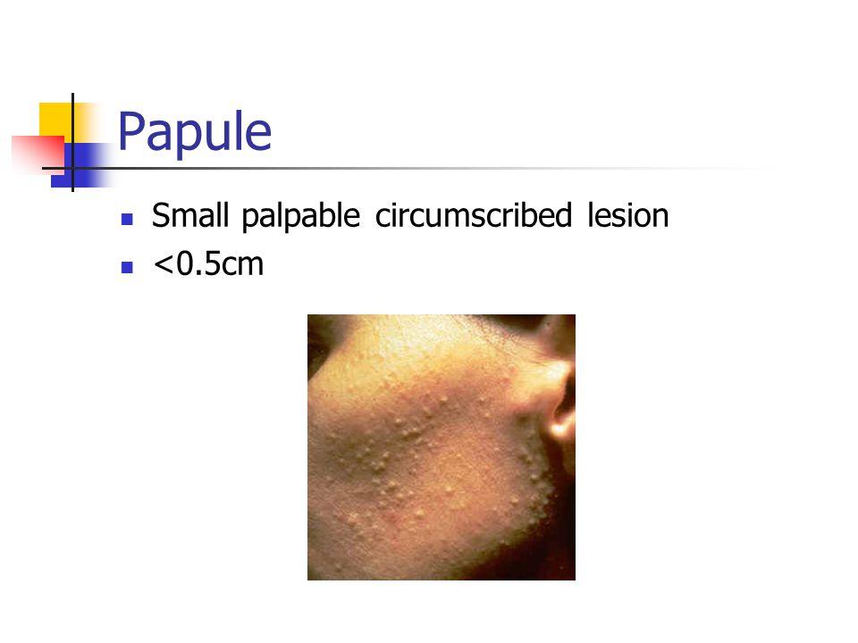 Papule Small palpable circumscribed lesion <0.5cm