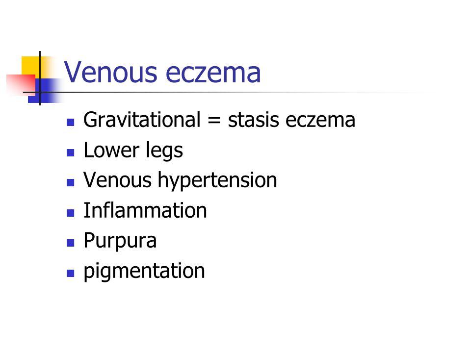 Venous eczema Gravitational = stasis eczema Lower legs Venous hypertension Inflammation Purpura pigmentation