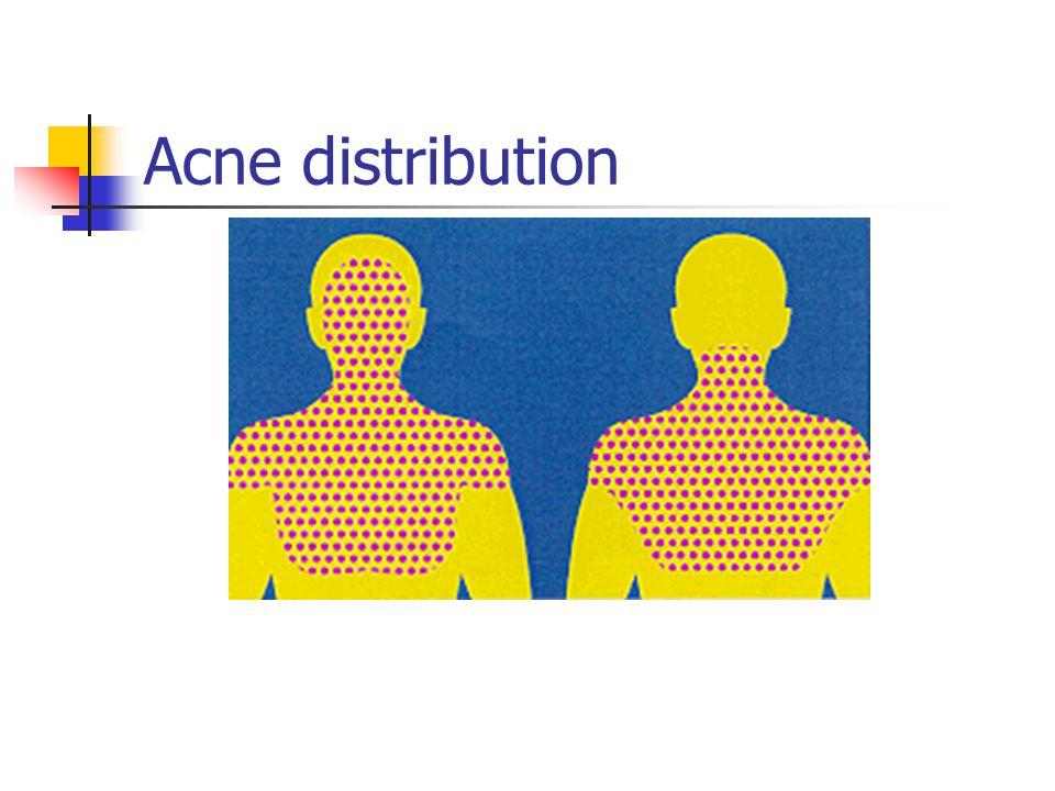 Acne distribution