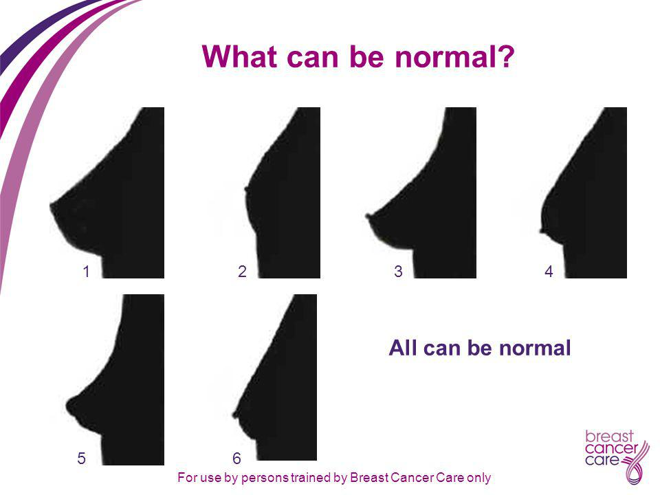 For use by persons trained by Breast Cancer Care only What can be normal All can be normal 312456